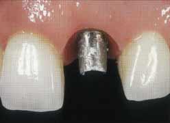 Имплантация зубов -  перед фиксацией окончательной реставрации