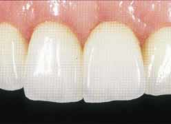 Имплантация зубов - фиксация окончательной реставрации