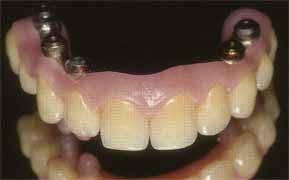Имплантация зубов - готовая восковая модель протеза для третьего этапа имплантации