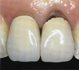 Имплантация зубов - повреждение верхнего левого центрального резца