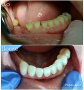 dentalworkcase2