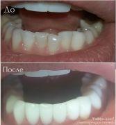 dentalworkcase26