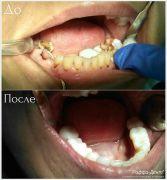dentalworkcase3