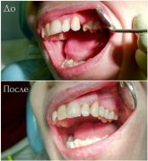 dentalworkcase5