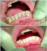 dentalworkcase6