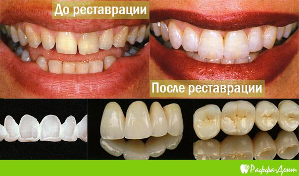 Примеры металлокерамических работ до и после протезирования