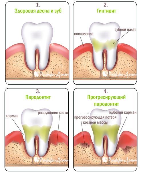 Лечение пульпита зуба в Минске