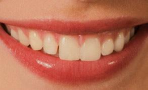 Стоматология в Минске проводит имплантацию зубов по низким ценам и устанавливает не дорогие имплантанты для минчан и гостей Минска и Минской области.
