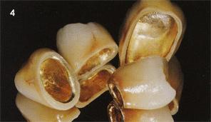 металлокерамика цены, обточка зубов под металлокерамику, зубные протезы металлокерамика